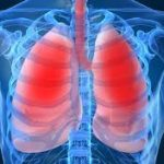 M.D. Chest & Tuberculosis